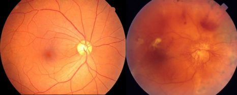 photo of the retina in a normal eye and eye with DR